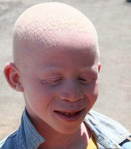 Copil cu albinism